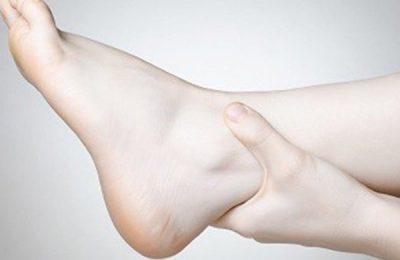 chân bị phù